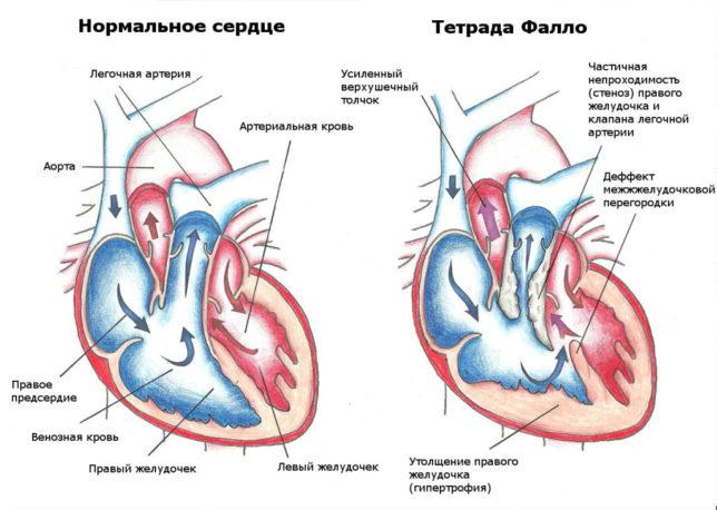 Общее понятие и описание недуга