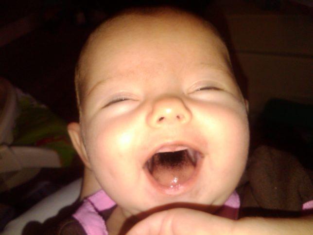 Почему язык у малышей чернеет?