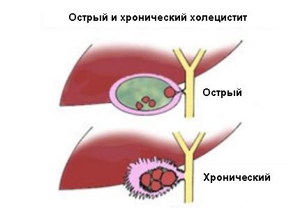 Классификация и формы болезни