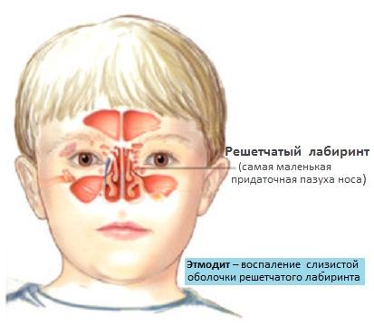 Характеристика и описание недуга