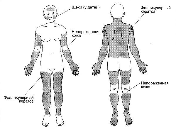 Симптомы и признаки воспаления