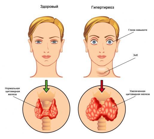 Виды и формы патологий