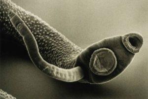 Что такое острицы в кишечнике?