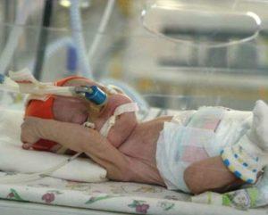 Схема лечения малышей