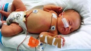 Флегмона новорожденных
