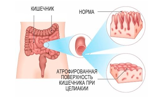 Характеристика заболевания и факты