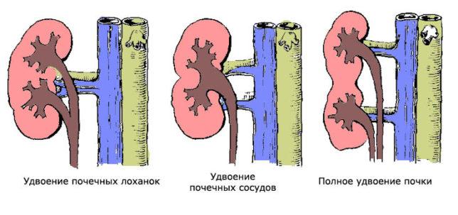 Общие сведения о патологии и особенности