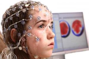 Энцефалопатия головного мозга - что это такое?