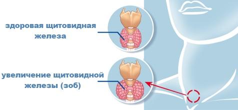 В чем опасность увеличения железы?